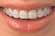 Teeth Alignment Correction