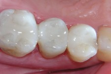 White Mercury Free Fillings