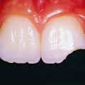 Broken and knocked out tooth Mangment
