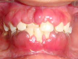 Medications Cause Gums Enlargment