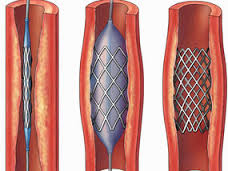 Coronary angioplasty and stents
