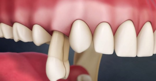 What to do for Knock Out Permanent Tooth?