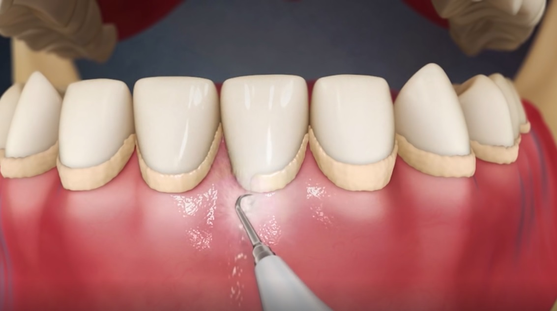 The Serious Outcome of Tartar Formation on Teeth - Doctor Monther