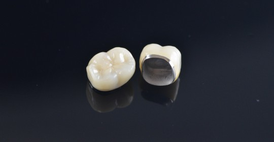 What is Porcelain Fused to Metal (PFM) Crowns?
