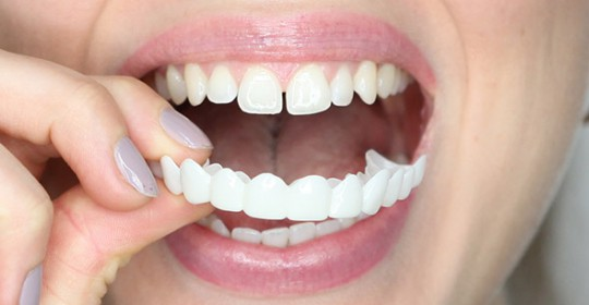 Removable Smile Makeover