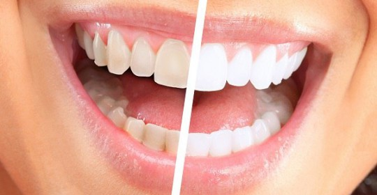 What you should know about having whiter teeth