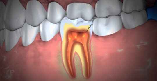 What is Tooth Abscess?
