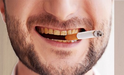 Smoking Effects on Oral Health