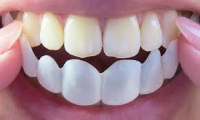 Removable Smile