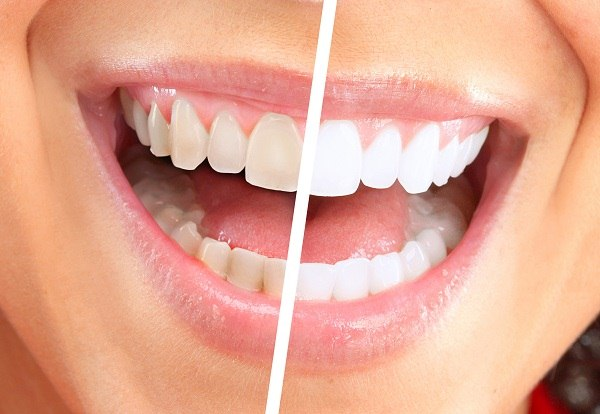 How to Get Straight White Teeth how to get straight white teeth How to Get Straight White Teeth how to get white teeth